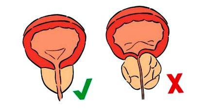 Melyek a leggyakoribb szövődmények prosztataműtét után? | Rákgyógyítás
