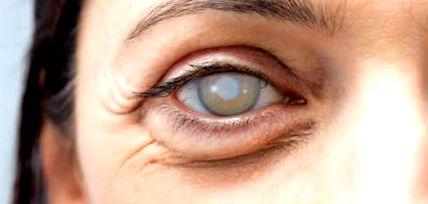 állapotok a látásról