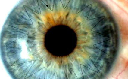 szaruhártya-transzplantáció és látás
