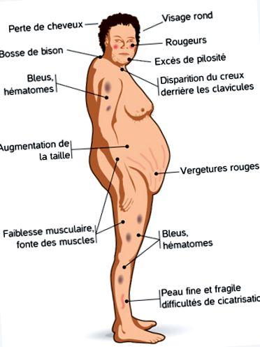 pierderea în greutate cu boala lui cushing