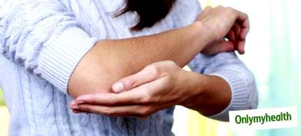 hogyan lehet eltávolítani a hátsó zsírtekercseket