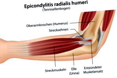 könyökbetegség epicondylitis tünetei
