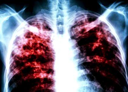 A tüdőtuberkulózis (tbc) tünetei és rizikófaktorai, TBC fogyás Fogyás tuberkulózis
