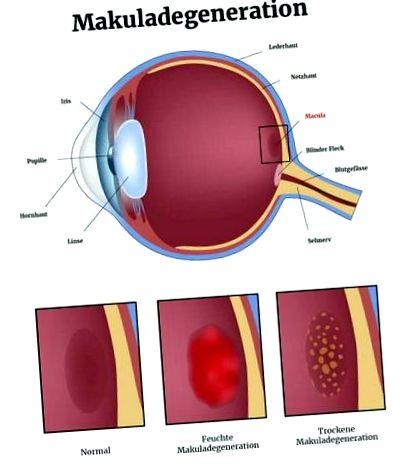 Letölthető szimulátor a látás javításához