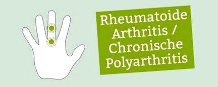 A kezek szeronegatív rheumatoid arthritis. Seronegatív ízületi gyulladások - Immunközpont