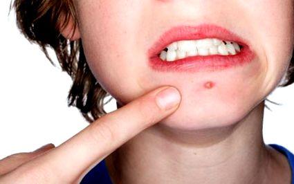 greutatea pierde în jurul gurii