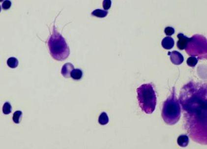 bacteria giardia sintomas paraziták tünetei a felnőtt testében