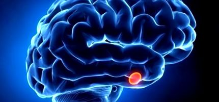 microadenoma kezelése