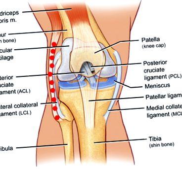 Térdfájdalom láz - Mikor szükséges orvoshoz fordulni térdfájdalommal?