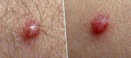Humani papiloma virus simptomi kod zena, Papiloma virus kod zene