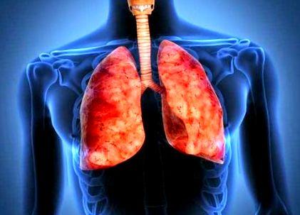 16 házi orvosság, hogy leszokj a dohányzásról, Mi a legjobb gyógymód a dohányzáshoz