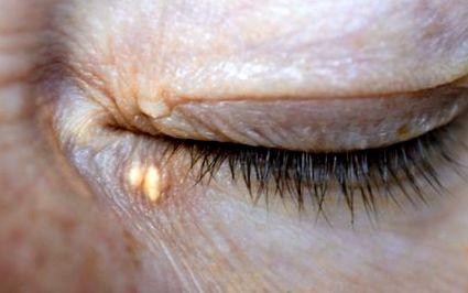 a retina betegségeinek szemészeti meghatározása