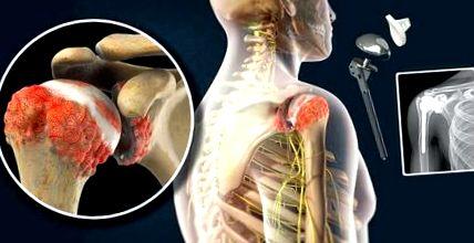 hogyan lehet érzésteleníteni a vállízület artrózisát