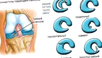 a csontokat összekötő szalagok károsodása)