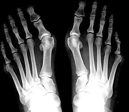hogyan kezeljük a középső lábujj artrózisát