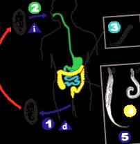 Oxyurosis okai, átvitele, tünetei, diagnózisa, megelőzése és kezelése Bioklinika