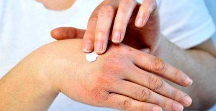 ízületi gyulladás a kar kenőcsének kezelésénél skarlát kezelés artrózis esetén