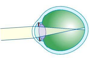 myopia gyakorlatok a látás javítása érdekében szenilis myopia kezelés