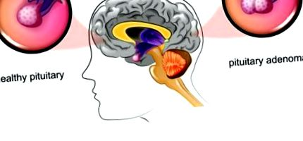 prolactinoma tünetei A krónikus prosztatisben hogyan kell enni