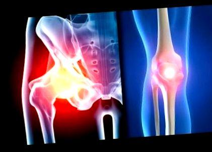 gimnasztika a csípő tünetei és kezelése