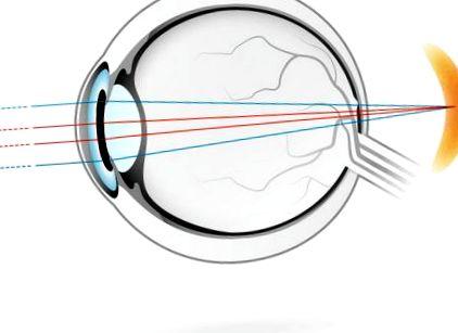 Mi a myopia és a hyperopia - Szemüveg September - Veleszületett hiperópia jellemzői