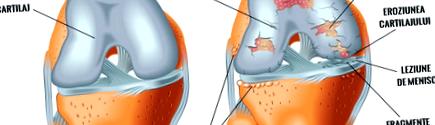 kenés a térdízület kezelésében fájó vénák a térd