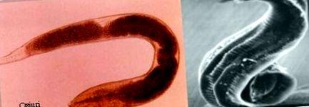 eozinofilszintek és paraziták