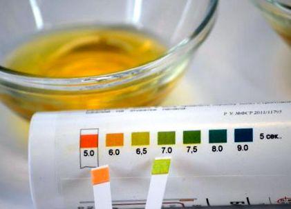 csuklós vérnyomásmérő használata