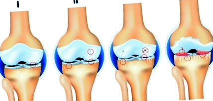 a láb osteoarthritisének tünetei és kezelése