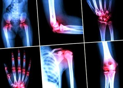 a jobb vállízület deformáló artrózisának kezelése