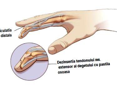 a falanx kezelés ízületi gyulladása)