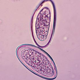 gabonák gomba parazita hogyan lehet azonosítani a férgeket vagy sem