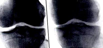synovitis a térdízület kezelésében)