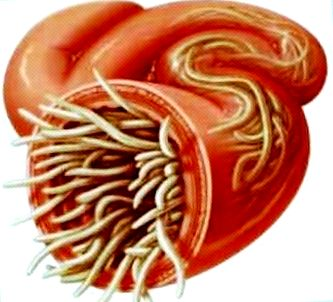Pinwormok a szervekben