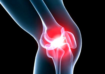 Meniscus sérülés és kezelése, Rögzített ízületi kezelés