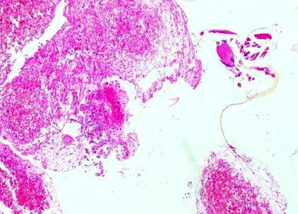 a nyelőcső patológiájának pikkelyes papillómája körvonalazódik paraziták a hörgők kezelésében