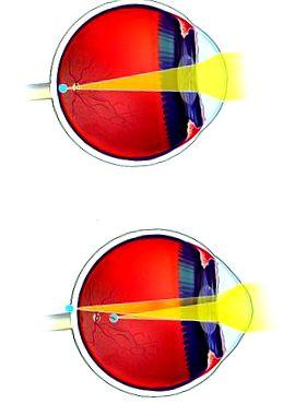 szemműtét hyperopia asztigmatizmus a látás helyreállítása akupresszúrával