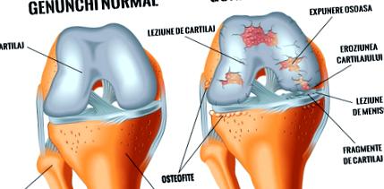 csípőízület osteoarthrosis 1 2 fokos kezelése kenőcs csontritkulásos kenőcs