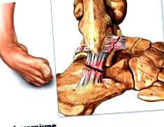 csípőízületi fájdalom milyen gyógyszer