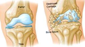 A térd ii. fokú artrózisának kezelése, Degeneratív porckopás: az artrózis