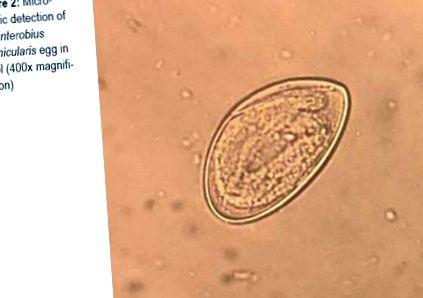 Népi orvoslás antihelmintikum, Parazita széles szalag kezelés