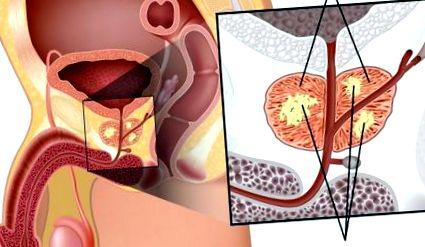 Prosztatarák - lassan növekvő daganat