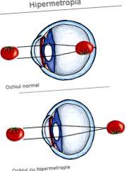 meggyógyult látás cseppek a látás javítására asztigmatizmussal