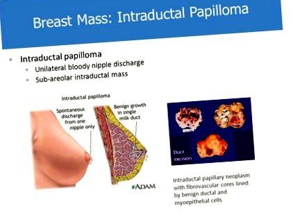 Intraductalis papilloma mutet