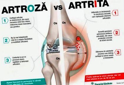 a térd osteoarthritis kezelését okozza