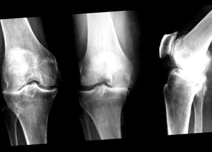GUNA FÁJDALOMCSILLAPÍTÁS Hogyan lehet kezelni a csípőízületek osteoarthritisét