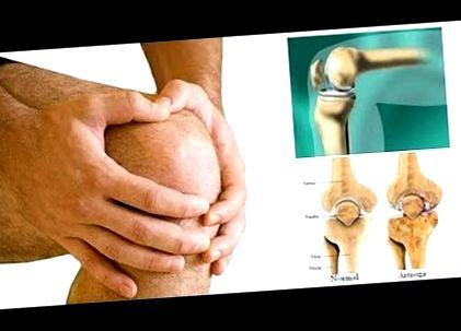 a csípőízület osteoarthritisének kezelésére