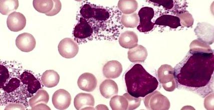 klinikai kép parazitákkal