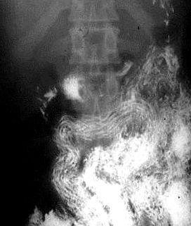 pinworm hossza