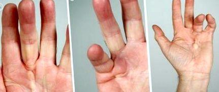 hajlító fájdalom az ujjak ízületeiben)
